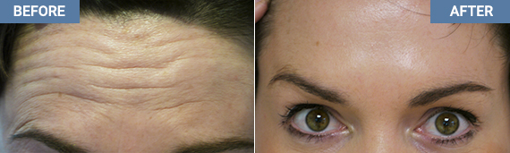 Botox Before And After - Belfast